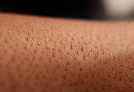 Trpíte na opakované ekzémy a záněty kůže? Podpořte činnost lymfy